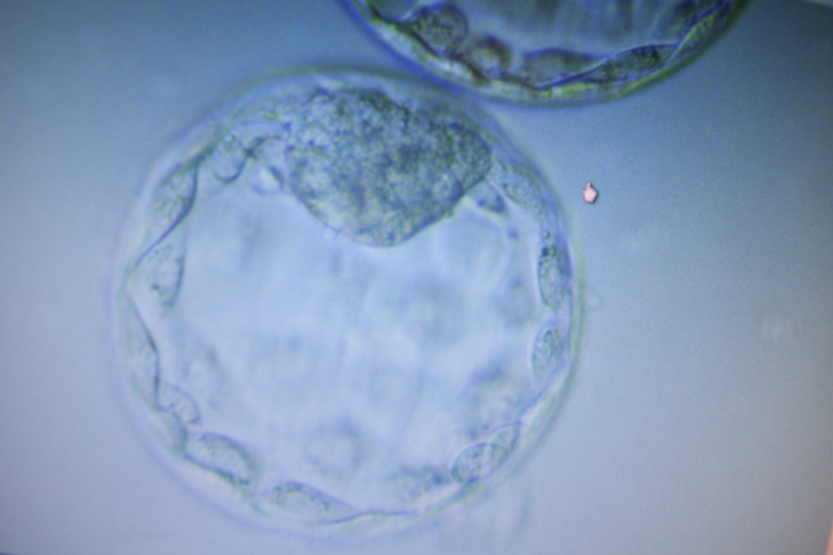 Adrienne Surprenant - Sur un écran, des ovules presque parfaites.