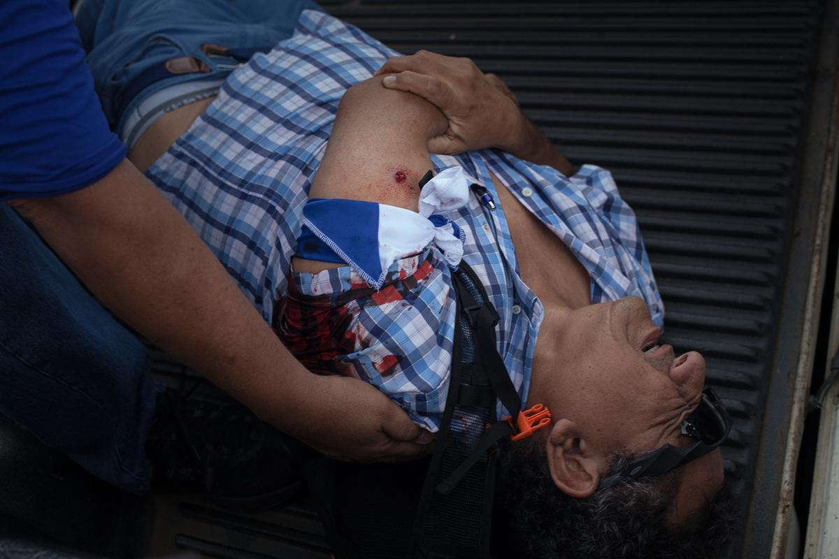 """Adrienne Surprenant - Le médecin Carlos Fletes, a été touché à l'épaule gauche lors de la """"Marche des drapeaux"""" du 2 septembre 2018 à Managua. Il serait un vétéran de l'armée Nicaraguayenne. Suite à cet incident, des manifestants ont installé des rangées de pierres, brûlés des pneus et une voiture de police, avant que plusieurs camions d'anti-émeutes ne les dispersent."""