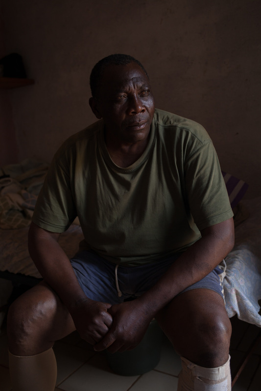 Adrienne Surprenant - René Malang Fongo, 58, is a policemen in his village. His venous ulcer prevented him from wearing real work shoes and then from walking painlessly. Even though he could go for free to the Military Hospital, he preferred to come to the Baleveng Wounds Hospital, because it is specialized. He hopes to be back to work soon.